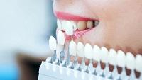 Что необходимо для установки зубных виниров: преимущества и особенности