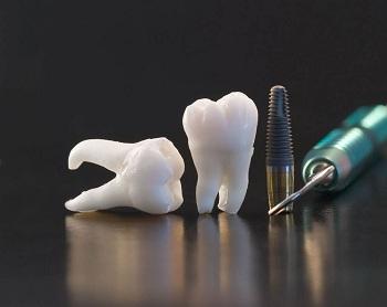 Особенности имплантации зубов: преимущества и методы