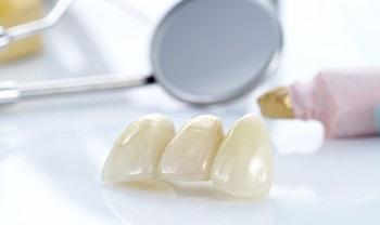 Замена зубных коронок: как часто требуется и этапы процедуры