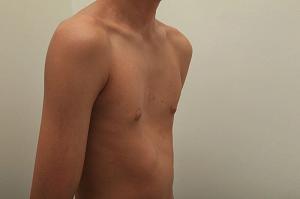 Деформации в грудной клетке: причины возникновения