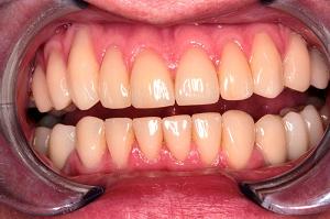 Имплантация зубов: способы и основные правила