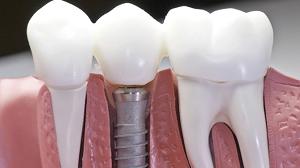 Имплантация зубов: правила, способы и советы